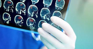 Роспотребнадзор дал рекомендации по профилактике инсульта